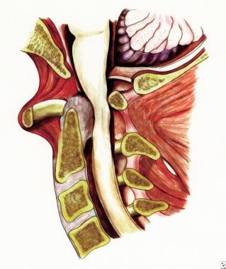Rheumatoid spondylitis. Depiction of anterior subl