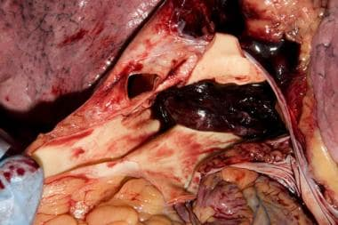 Occlusive pulmonary saddle embolus from the autops