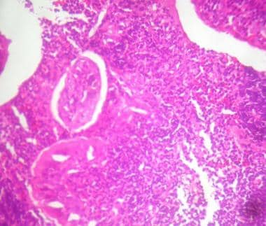 Microphotograph of adenoid showing lymphoid follic