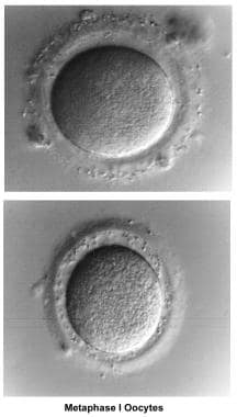 Infertility. Metaphase I oocytes. Image courtesy o