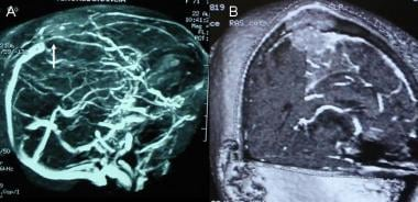 A: Noncontrast angio-magnetic resonance image (MR
