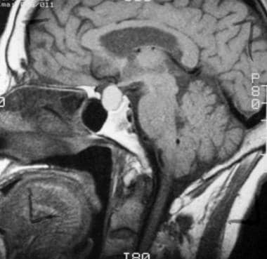 T1-weighted sagittal image obtained before contras