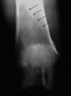 Coned down anteroposterior radiograph of the knee