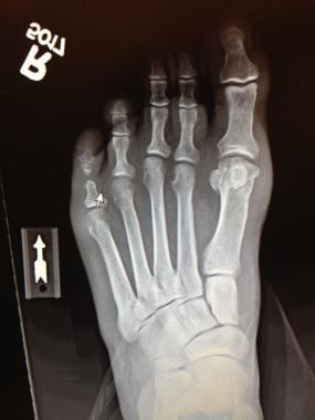 Radiograph shows relatively longer 3rd metatarsal.