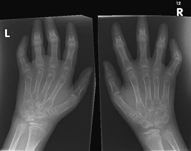 Widespread osteopenia, carpal crowding (due to car