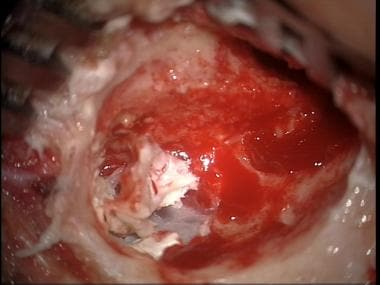 Advanced cholesteatoma with exposure of posterior