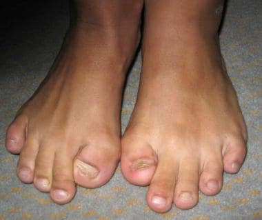 Characteristic malformed great toes and hallux val