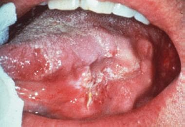 Oral squamous cell carcinoma in the most common in
