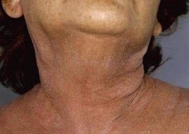 Exfoliative dermatitis close-up view showing eryth