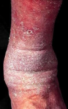 Asteatotic dermatitis on the lower extremity.
