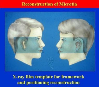 Reconstruction of microtia.