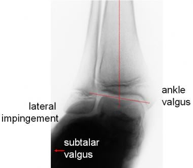 Lateral impingement may be due to ankle valgus, hi
