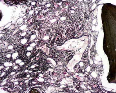 Reticulin stain on a bone marrow biopsy from a pat