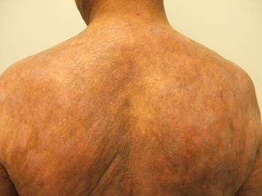 Patch-stage mycosis fungoides progressing to plaqu