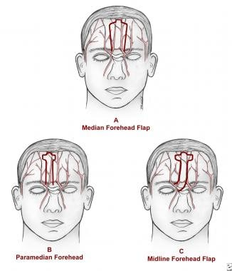 A is a median forehead flap over the forehead vasc