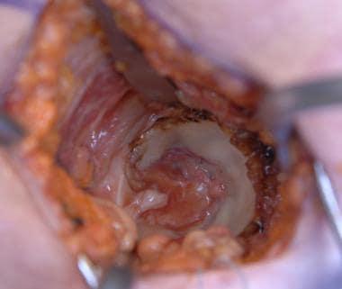 Minimally Invasive Total Hip Arthroplasty Technique