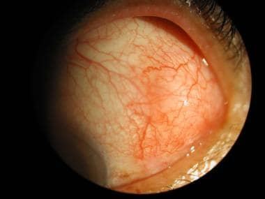 Episcleritis Clinical Presentation: History, Physical, Causes