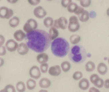 Dysplastic promyelocyte with cytoplasmic vacuole (