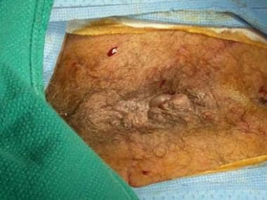 PPH stapled hemorrhoidectomy: completed procedure.