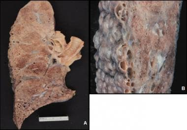 Gross photographs of UIP-associated lung. Honeycom