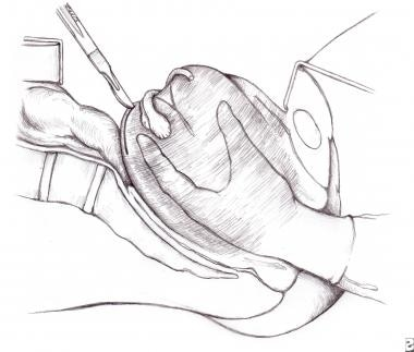 Uterine inversion. Image depicts the technique of