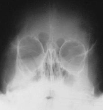 Frontal skull radiograph in a patient with NF1 sho