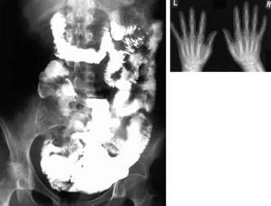 Three-hour image from a small bowel study shows ir