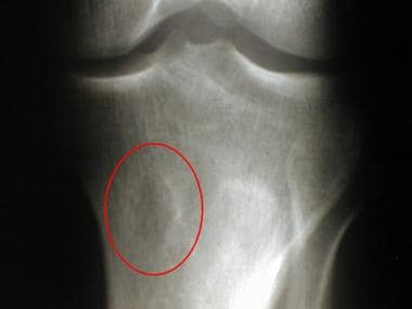 Chondromyxoid fibroma. Radiograph of the proximal