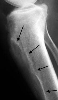 Lateral coned down radiograph of the tibia reveals