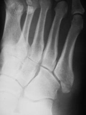 Fractured metatarsals. Comminuted fracture of the