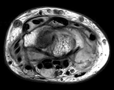 Axial proton-density weighted MR image at the leve