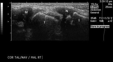 Clubfoot. Sonogram of the medial aspect of a norma