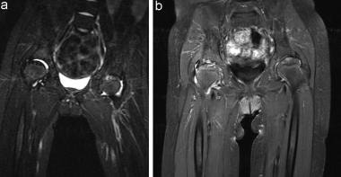 (A) T2-weighted MRI shows high signal in both hips