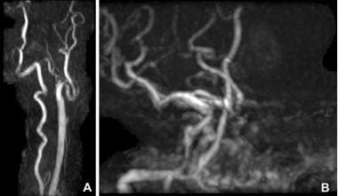 Magnetic resonance angiogram (MRA) demonstrates co