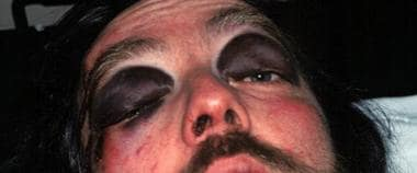 "Periorbital ecchymosis, or ""raccoon eyes,"" is a cl"