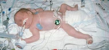 An ill preterm infant, such as this patient, requi