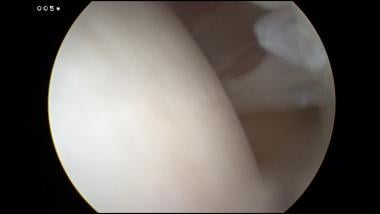 Arthroscopic view of an intra-articular band.