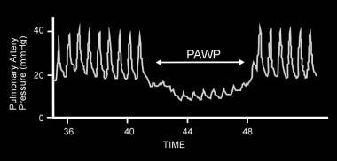 Pulmonary artery wedge pressure (PAWP) waveform ca