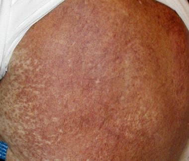 Red-brown papules can be seen in leukemia cutis. T