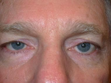 Left lower eyelid cicatricial entropion with lower