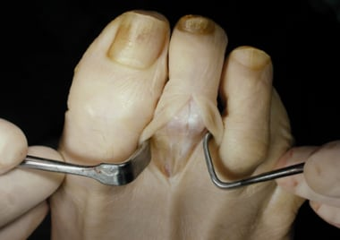 Claw toe. Dorsal approach to proximal interphalang