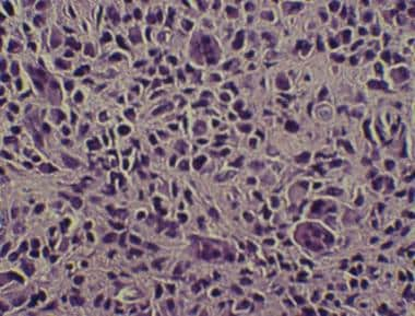 High-power photomicrograph of giant cell tumor of