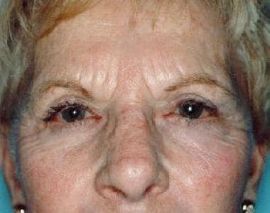 Prior to endoscopic brow lift surgery, 65-year-old