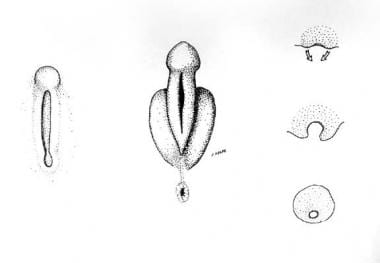 Left: External genitalia during the undifferentiat