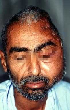 Frontal view of mycetoma in a 47-year-old shepherd