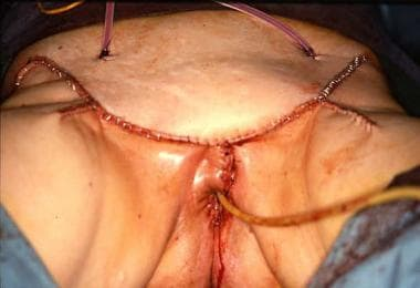 Closure of a large single-incision radical vulvect