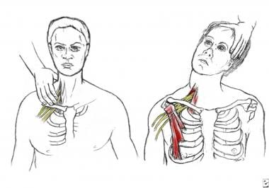 Scalene focal (left) and regional (right) stress t