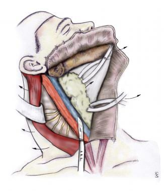 The carotid sheath and vagus are identified. The n