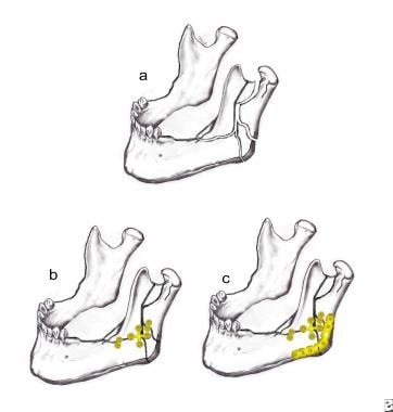 management of mandibular fractures pdf
