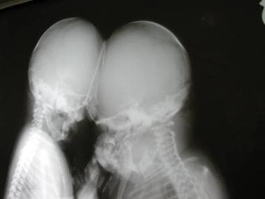 A radiograph of the skull, showing the conjoined h